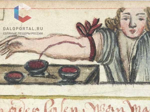 Как лечили простуду в Европе в период Средневековья